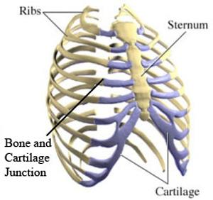 costochondritis in fibromyalgia | the body principle, Skeleton