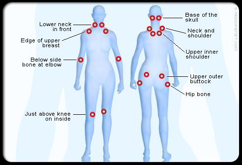 Fibromyalgia Points Diagram